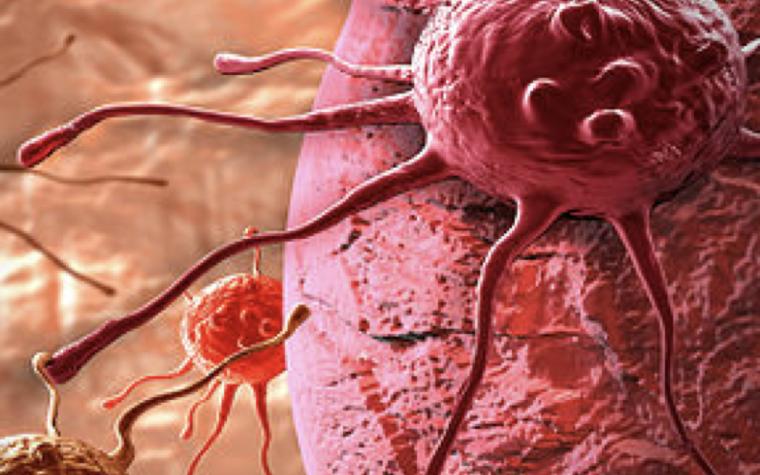 La chemioterapia NON diffonde il cancro, nessuno studio lo ha dimostrato